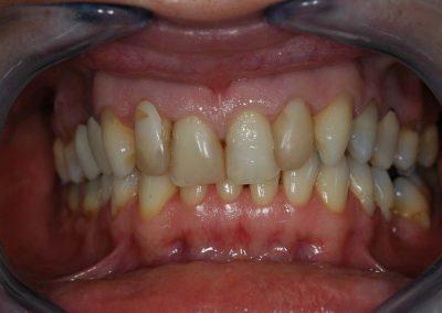agyontomot-fogak-rossz-esztetika