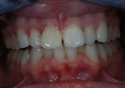 agyontomot-front-fogak