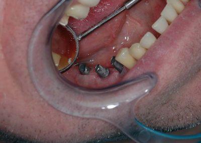 also-implantatum-felepitmenyek-a-szajban