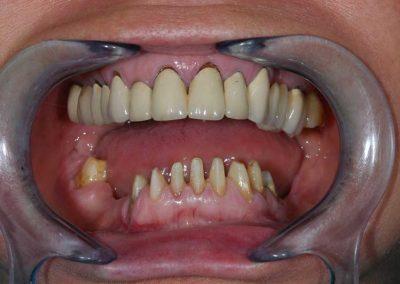 alul-elokeszitett-lecsiszolt-fogak