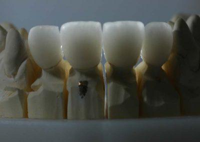 cirkonium-fenyateresztese-a-sajat-fogakhoz-hasonlo