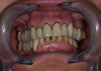 eros-inyrecessziok-a-felso-korhidnal-es-az-also-fogaknal