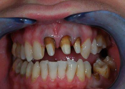 felepitett-fogak