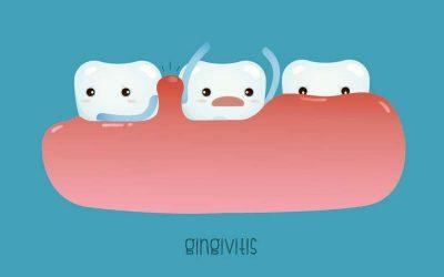 A fogágybetegség kialakulása