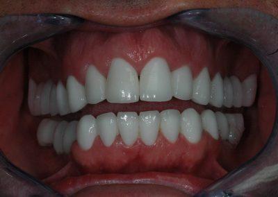 hofeher-fogak