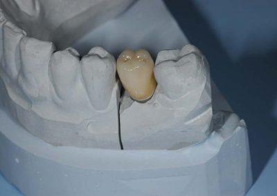 implantos-cirkonium-korona-a-gipszmintan