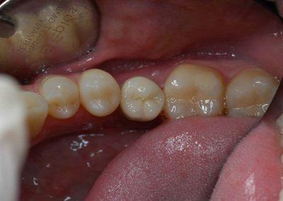 implantos-korona-szajban