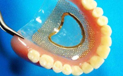 Kivehető fogsorok clear szájpaddal