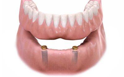 Lokátorral erősített hibrid fogsorok