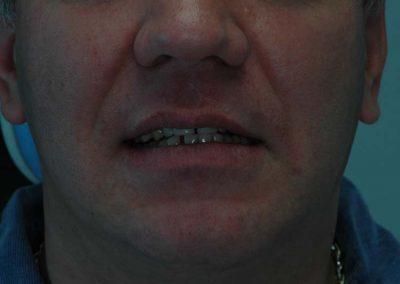 mosolygasnal-is-latszanak-a-potolt-fogak