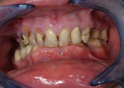 oriasi-merteku-melyharapas-erosen-destrualt-fogak