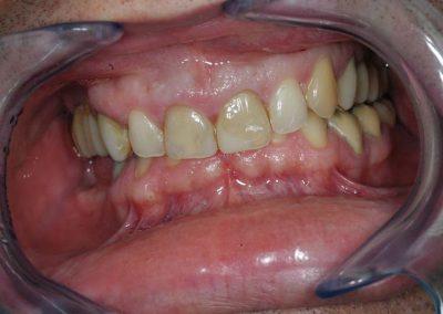 sok-tomessel-rendelkezo-elszinezodott-fogak