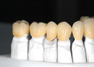 termeszethu-cirkon-fogak