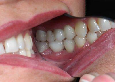 vegleges-implantatumos-koronak