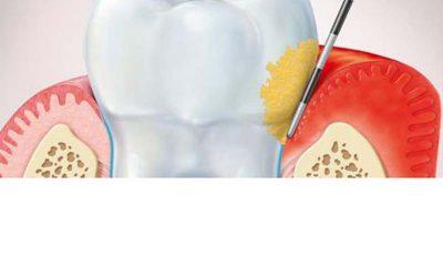 A fogkő és az ínygyulladás
