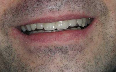 Implantáció és cirkon koronák
