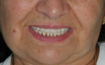 Implant. alsó kivehető pótlás