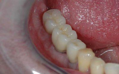 Implantátumos laterális fogpótlás