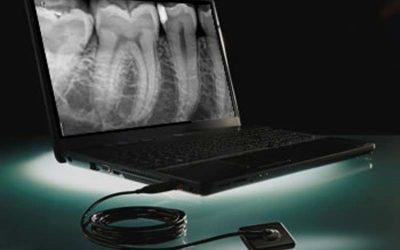 Intraorális röntgen