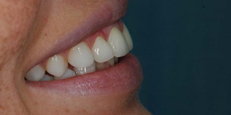 Torlódott fogak helyreállítása