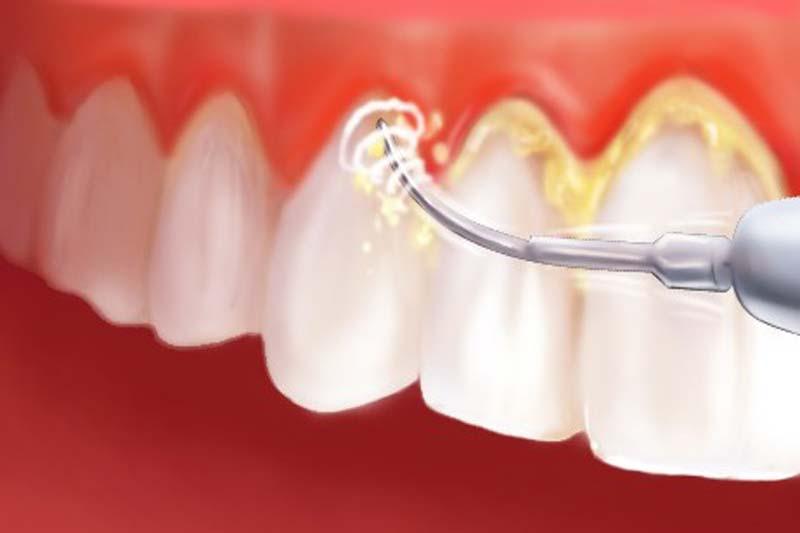 Ultrahangos fogkőeltávolítás