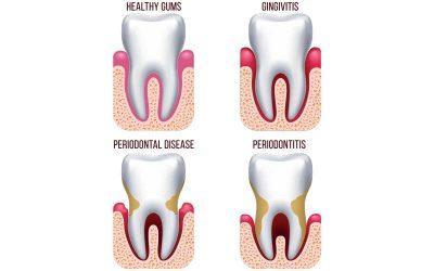 A fogágybetegség is lehet góc!